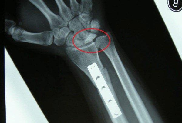 キーンベック病体験記(4)手術と術後の経過